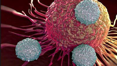 Не се шеќерите главен причинител на ракот, мастите поттикнуваат ширење на канцерот