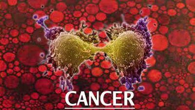 Откриен нов метод за уништување на клетките на ракот